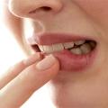 Хвороби ясен небезпечні для жіночого здоров'я